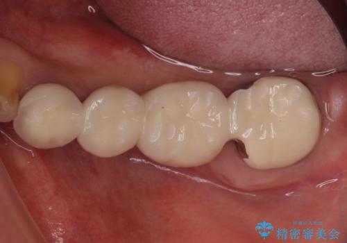 奥歯が痛くて噛めない インプラントによる補綴治療の症例 治療前