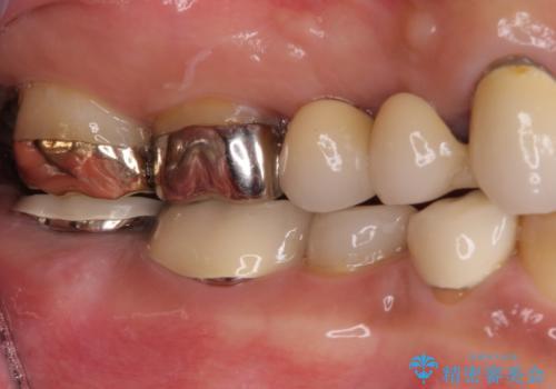 奥歯が痛くて噛めない インプラントによる補綴治療の治療前