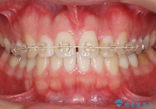 前歯のねじれ 上だけ部分矯正でコストダウンの治療中