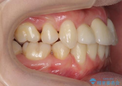 前歯がグラグラする 他院で、もうできることがないと言われたの治療後