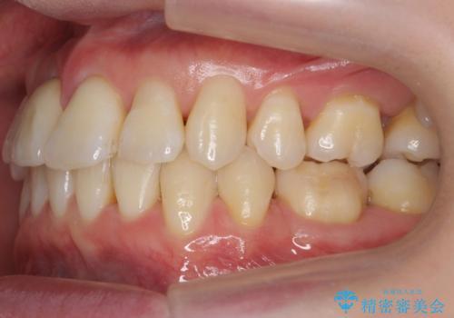 前歯がグラグラする 他院で、もうできることがないと言われたの症例 治療後