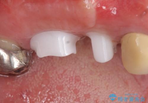 インプラント(ストローマン) 抜歯後の欠損補綴の治療中