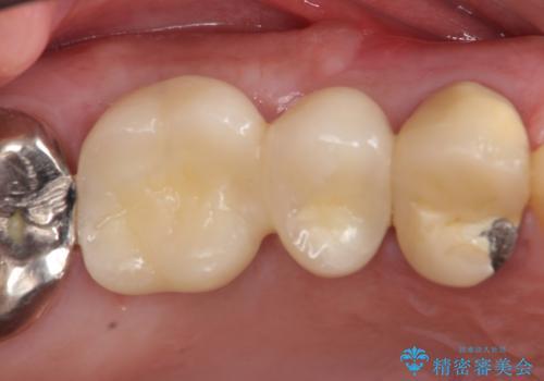 インプラント(ストローマン) 抜歯後の欠損補綴の治療後