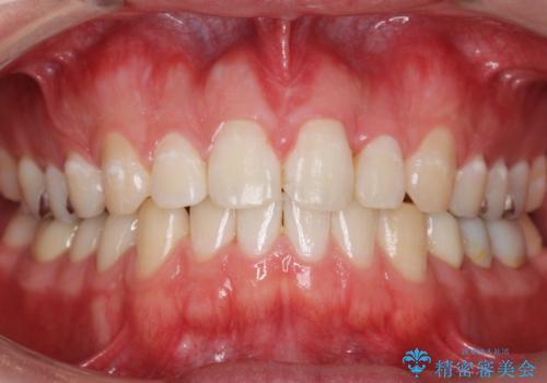 前歯のねじれ 上だけ部分矯正でコストダウンの症例 治療後