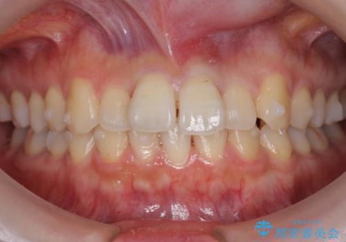 軽度の前歯のがたつき 下の前歯が生まれつき少ないの治療中