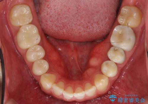 前歯のねじれ 上だけ部分矯正でコストダウンの治療後