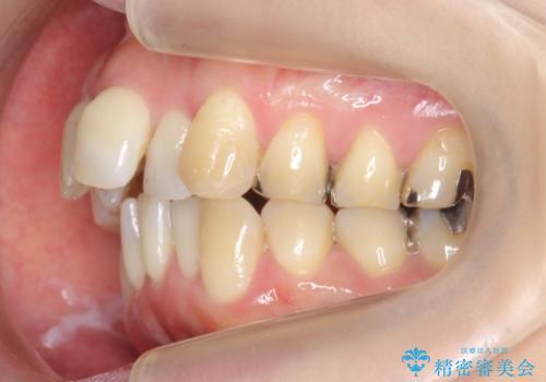 40代の矯正 出っ歯、歯のがたがたの治療前