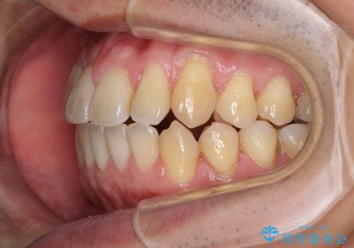 矯正歯科治療と前歯の歯肉移植術の治療中