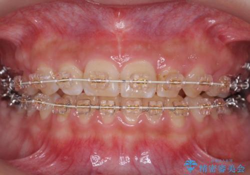 前歯のがたつき 過蓋咬合の治療中