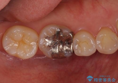 銀歯を白く セラミックインレーにの治療前