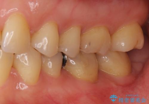目立つ銀歯を全て白く セラミックで虫歯治療の治療前