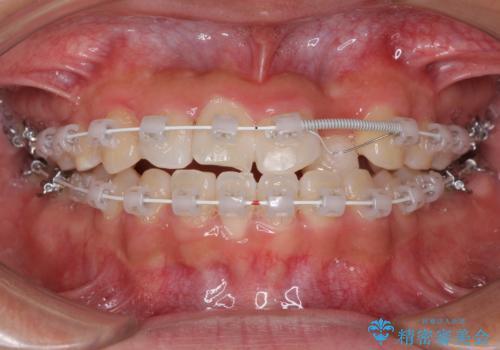 美容歯科でも断られた 著しい前歯のクロスバイトをワイヤー矯正で改善の治療中