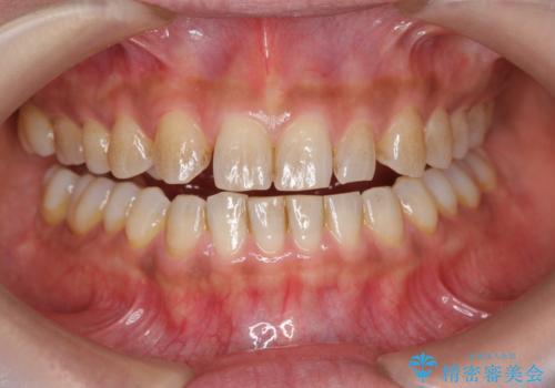 ホワイトニングで白い歯に 1日でできますの治療前