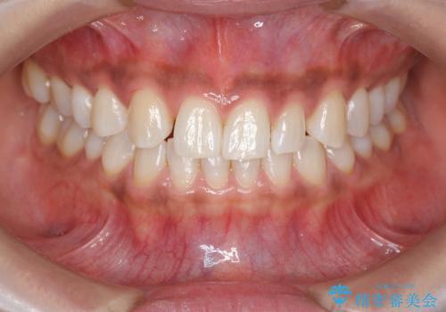 ホワイトニングで白い歯に 1日でできますの症例 治療後