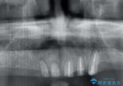 [インプラントオーバーデンチャー] インプラントで奥歯を支える部分床義歯の治療前