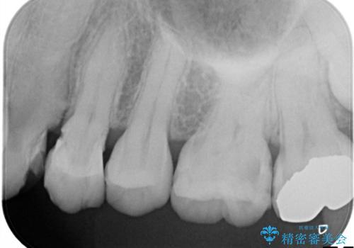 他院による虫歯治療の再治療。の治療前