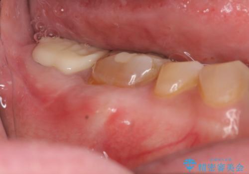 歯ぎしりによる異常に低い歯冠高径  歯周外科による解決の症例 治療後