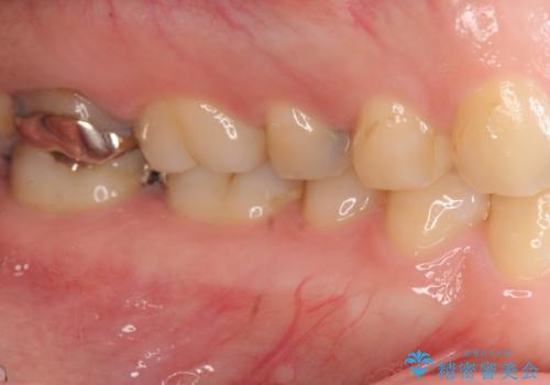 [フルジルコニアクラウン] 老朽化した銀歯を白くの治療前