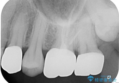 他院による虫歯治療の再治療。の治療後