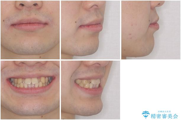 前歯のクロスバイト インビザラインによる矯正治療の治療前(顔貌)