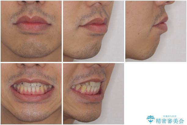 矯正歯科治療と前歯の歯肉移植術の治療前(顔貌)