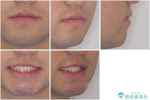 美容歯科でも断られた 著しい前歯のクロスバイトをワイヤー矯正で改善の治療前(顔貌)