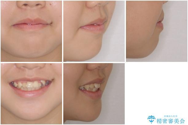 乳歯が残っている 目立たない装置での抜歯矯正の治療前(顔貌)