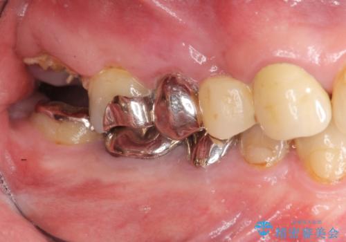 [強すぎる咬合力] 破折歯のインプラントによる咬合機能回復治療の治療前