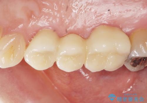 虫歯による歯の喪失 ジルコニアブリッジの製作の治療後