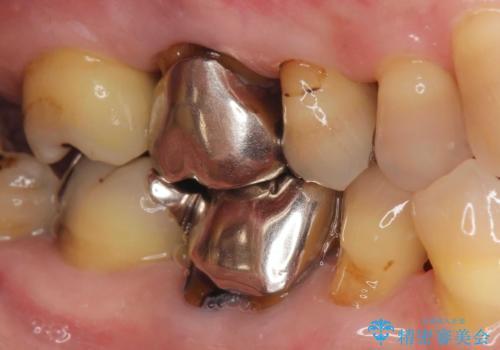 [銀歯の下の虫歯 ] 根管治療を伴う虫歯治療の治療前