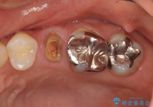 放置し崩壊した歯 セラミック治療による咬合機能回復の治療前
