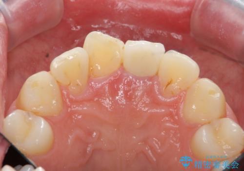 [ジルコニアクラウン] 前歯をきれいにの治療後