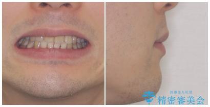 口元の突出感と叢生 ワイヤー装置による抜歯矯正の治療後(顔貌)