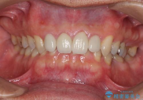 [根管治療・セラミック補綴]  歯ぐきを押すと痛いの治療前