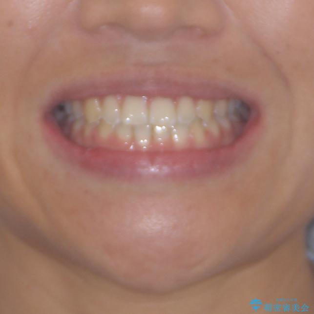 前歯の隙間を閉じたい 短期間でのワイヤー矯正の治療後(顔貌)