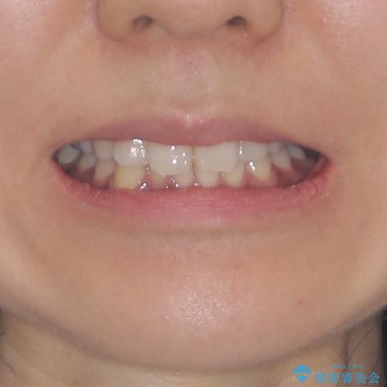 抜歯矯正の後戻り インビザラインによる再矯正治療の治療前(顔貌)