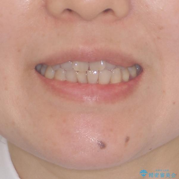 前歯の叢生と切端咬合 インビザラインによる矯正治療の治療前(顔貌)