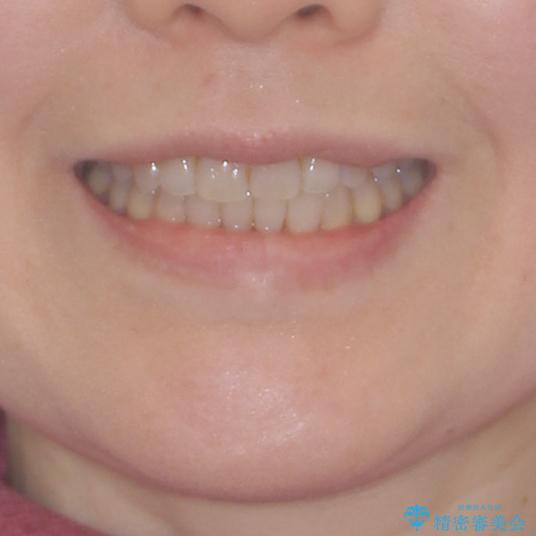 前歯の叢生と切端咬合 インビザラインによる矯正治療の治療後(顔貌)