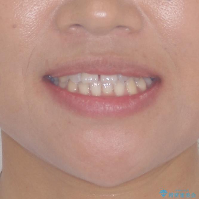 前歯の隙間を閉じたい 短期間でのワイヤー矯正の治療前(顔貌)