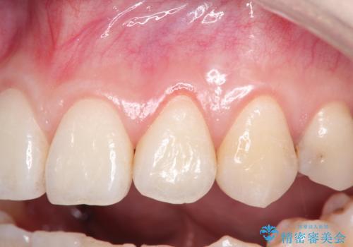 前歯の歯肉退縮 歯周形成外科(歯冠側移動術)の症例 治療前