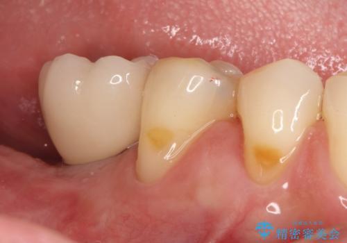 奥歯が痛い。抜歯~奥歯のインプラント の治療後