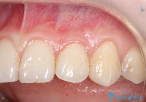 前歯の歯肉退縮 歯周形成外科(歯冠側移動術)の症例 治療後