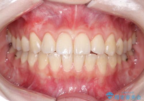 前歯の歯肉退縮 歯周形成外科(歯冠側移動術)の治療後