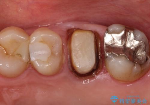 発見の難しい虫歯。根管治療から被せもの治療の治療中