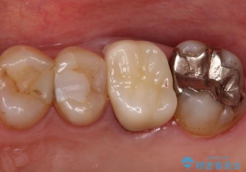 発見の難しい虫歯。根管治療から被せもの治療の治療後