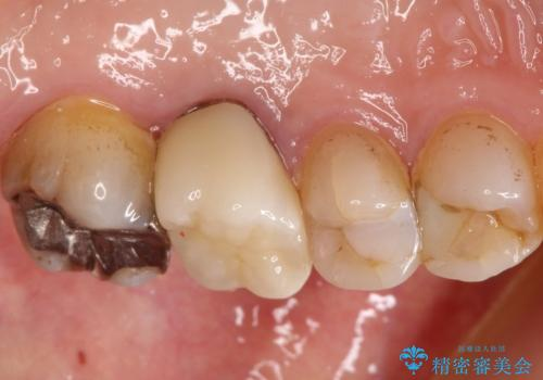 発見の難しい虫歯。根管治療から被せもの治療の症例 治療後