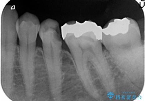 銀歯が外れ、内部に大きな虫歯の再発の治療前