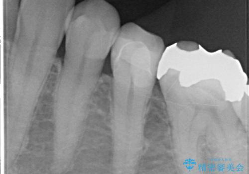 銀歯が外れ、内部に大きな虫歯の再発の治療後