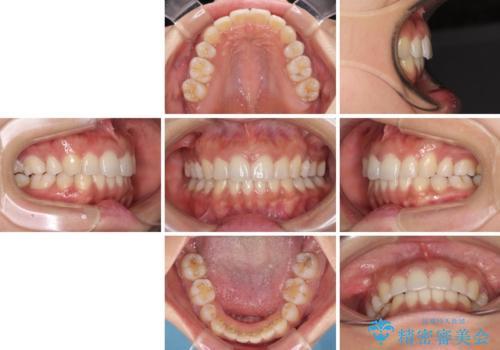 抜歯矯正の後戻り インビザラインによる再矯正治療の治療後
