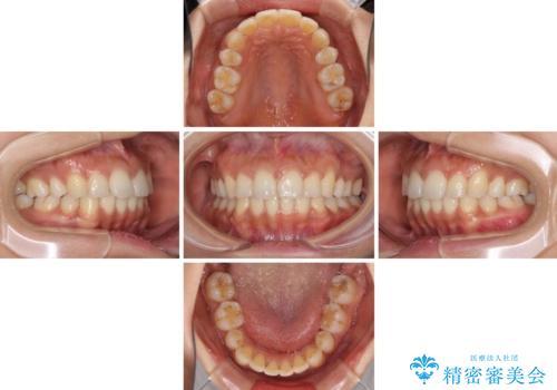 抜歯矯正の後戻り インビザラインによる再矯正治療の治療中